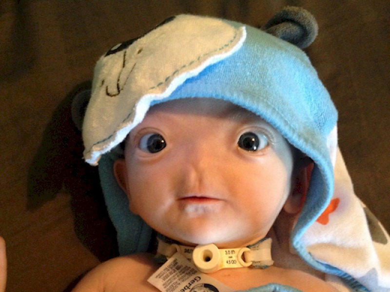 Врачи впали в ступор, когда увидели этого новорожденного