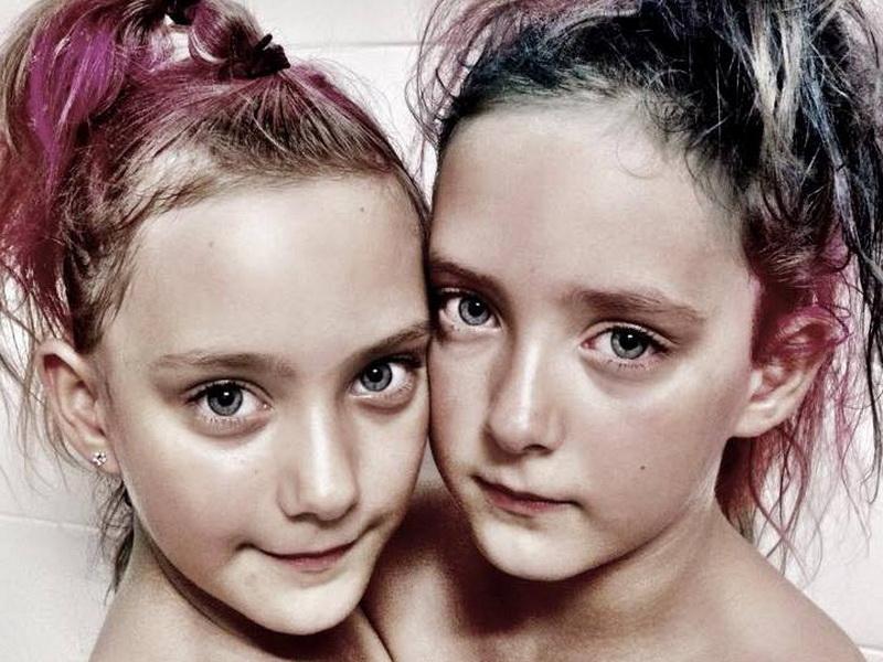 Эти близняшки еще в утробе заставили понервничать своих родителей