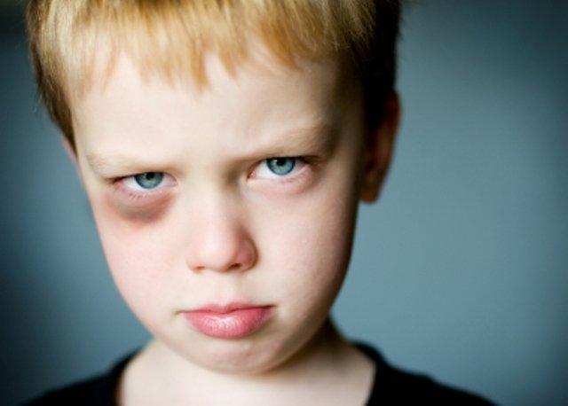 Вовочка приходит на урок с подбитым глазом, его учительница и спрашивает…