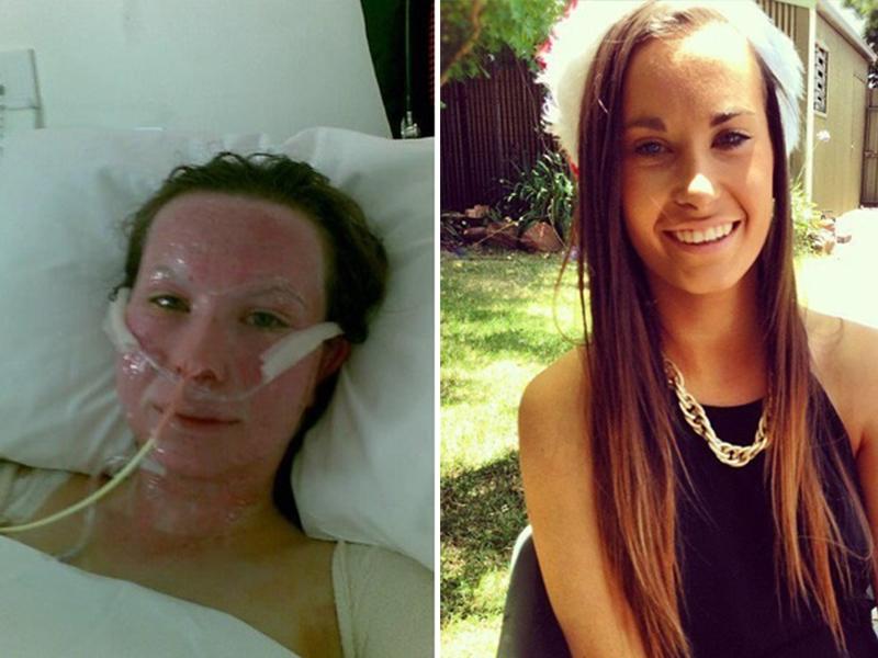 Девушка выжила после аварии, но впереди ее ждали ужасные испытания