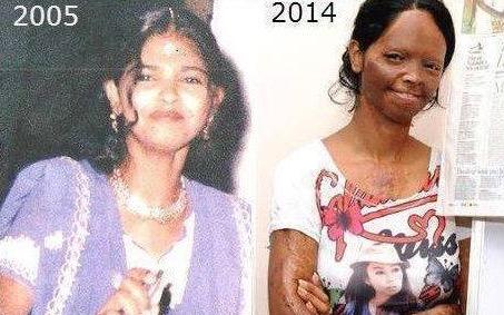 26-летняя красавица. Взглянув сегодня на ее лицо, не верится, что кто-то мог с ней так поступить.