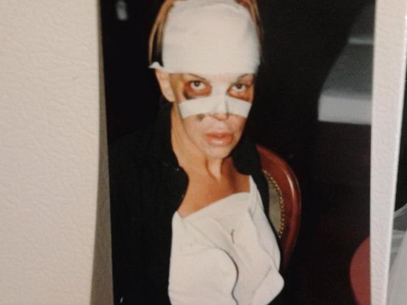 56-летний итальянец сделал десятки операций, чтобы стать женщиной