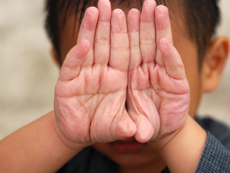 Почему наши пальцы становятся морщинистыми от долгого пребывания в воде?