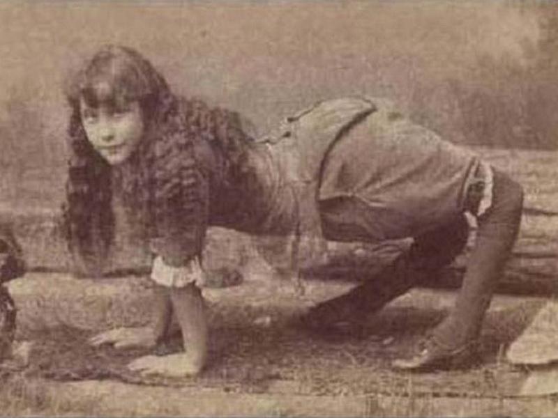 Необычные люди: «цирковые уроды» с дефектами тела, на которых  раньше ходила смотреть публика