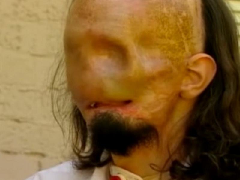 Через пару месяцев после трагедии он вышел из комы. И когда он прикоснулся к своему лицу, его охватил ужас!