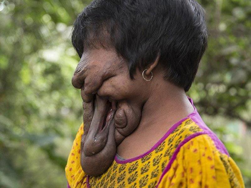 У этой девушки нет лица, но она все равно довольна своей жизнью