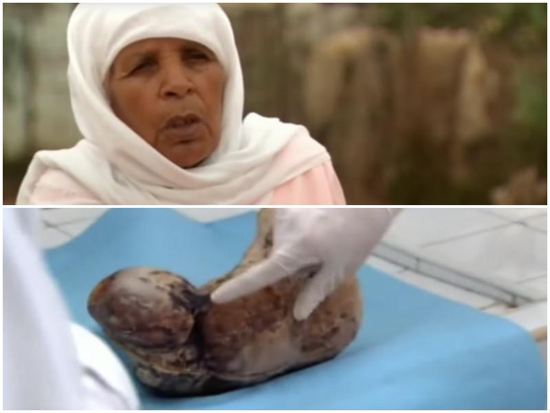 Опухоль, которую врачи вырезали из тела пожилой женщины, оказалась чем-то более шокирующим!
