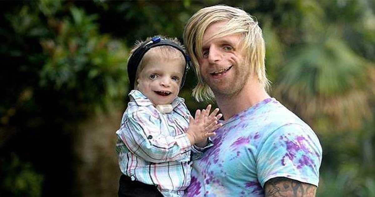 Двухлетний ребенок родился с очень редким заболеванием. Тогда человек с таким же синдромом решил навестить его!