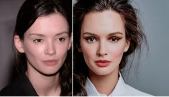 «Факты на лицо» — как выглядят российские звезды БЕЗ фотошопа