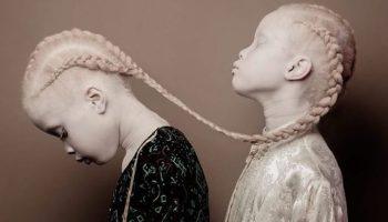 Близнецы-альбиносы в 11-летнем возрасте стали известными моделями