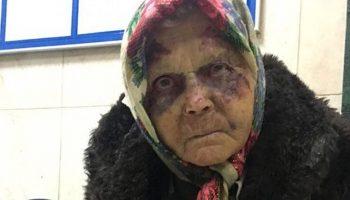 Старушку избили в аэропорту, но милиция и медики отказались ей помогать, считая, что она бомж…До слез!
