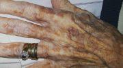 Пожилая женщина попросила медсестру обрезать ногти на руках, и вот что услышала в ответ