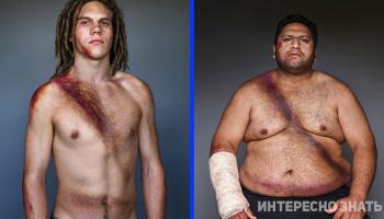 Пояс выживших: шокирующие портреты, показывающие, как ремень безопасности спас им жизнь