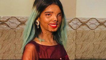 Девушка из Индии пережила нападение отца и навсегда осталась инвалидом