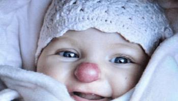 Как выглядит девочка, которая родилась с «клоунским» носом спустя 3 года