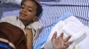 Индийские хирурги пришили мальчику руку после неудачной игры в траве