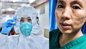 Вот так выглядят лица врачей после рабочих смен в больницах