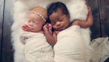 Эти удивительные близнецы, Качи и Камси, прославились на весь мир