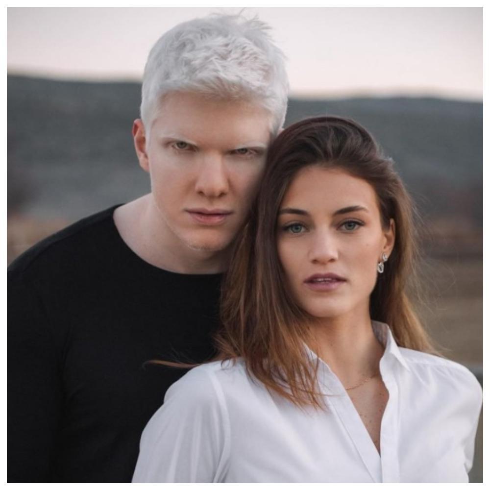 Модель — альбинос Бера Иванишвили и его жена Нанука Гудавадзе ...