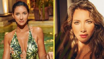 Даже после ампутации ноги 32-летняя «Мисс Колумбия» сохраняет жизнерадостность