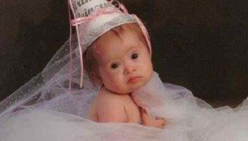Девочку с синдромом Дауна, лейкемией и деформированным позвоночником, настойчиво советовали оставить в роддоме