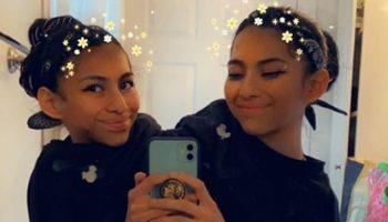 Сеть покорили 19-летние сиамские близнецы, которые устроили фотосессию