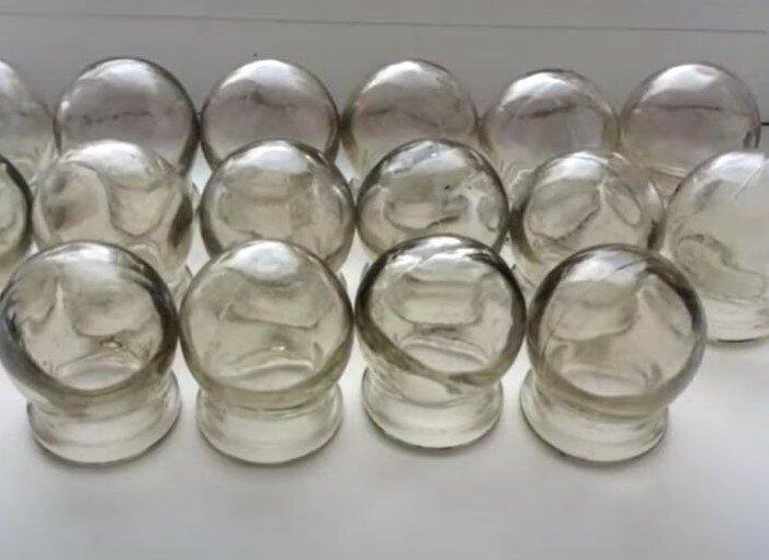 Медицинские стеклянные банки. Их использовали для лечения простуды и кашля.