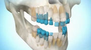 Вы сможете вырастить зубы самостоятельно в любом возрасте